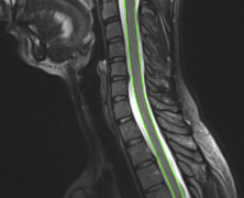 Automatic Spinal Cord Centerline Extraction on MR Images