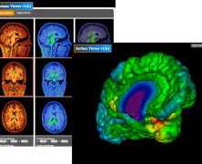 fMRI Analysis with CBRAIN